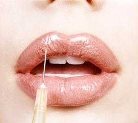 לנשיקה מושלמת: איך תשדרגו את השפתיים?