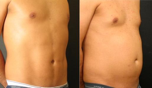 עיצוב קוביות בבטן לגברים