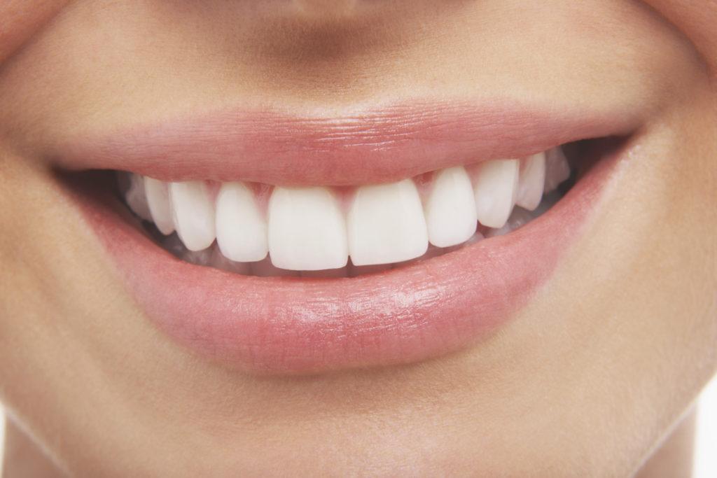 שיניים ואסתטיקה