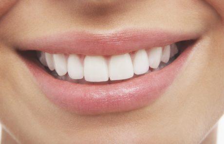 שיניים מחייכות