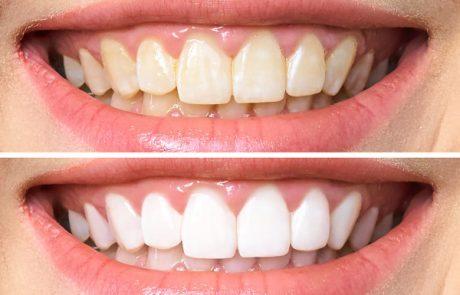 הלבנת שיניים: 4 מיתוסים שכדאי שתפסיקו להאמין בהם