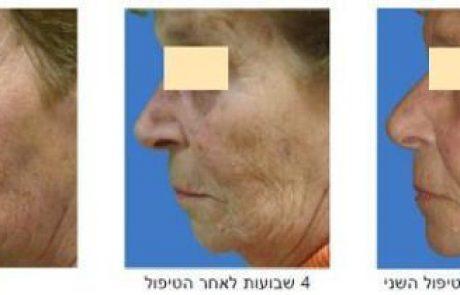 הדור האחרון באבולוציית מערכות חידוש העור
