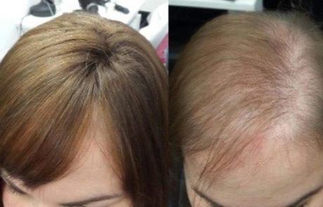 סובלת מדלילות שיער?