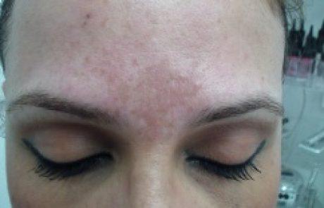 קוסמטיקה: איך ניתן לטשטש כתמים בעור