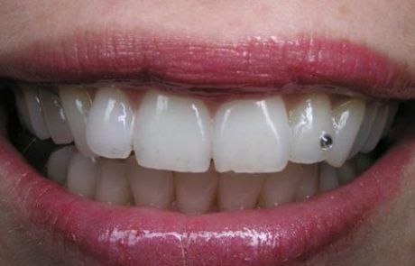 שיניים של שחקנית הוליוודית