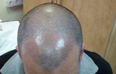 הדמיית שיער וטכניקת השערה באיפור קבוע